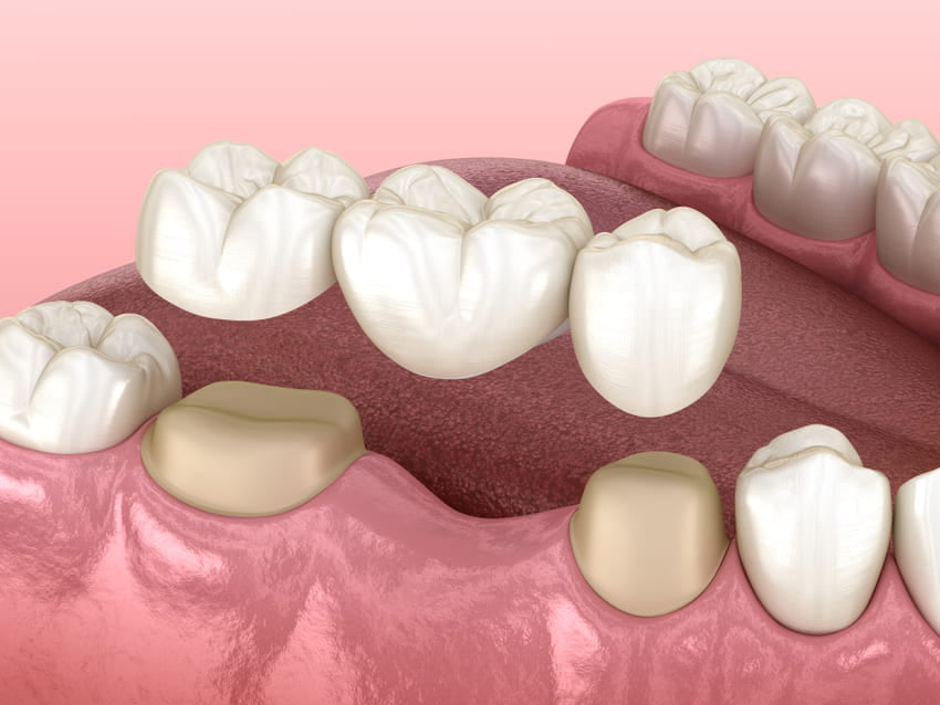 Implantes dentales o puentes